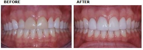 Replacing old composite of veneers