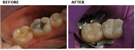 Composite Replacement of Amalgam