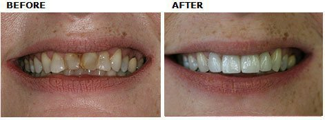 Esthetic Layered Ceramic Crowns