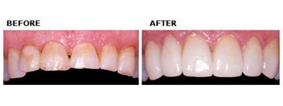 Upper Teeth Veneers